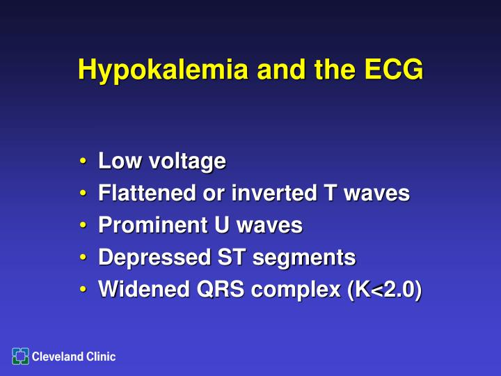 Hypokalemia and the ECG