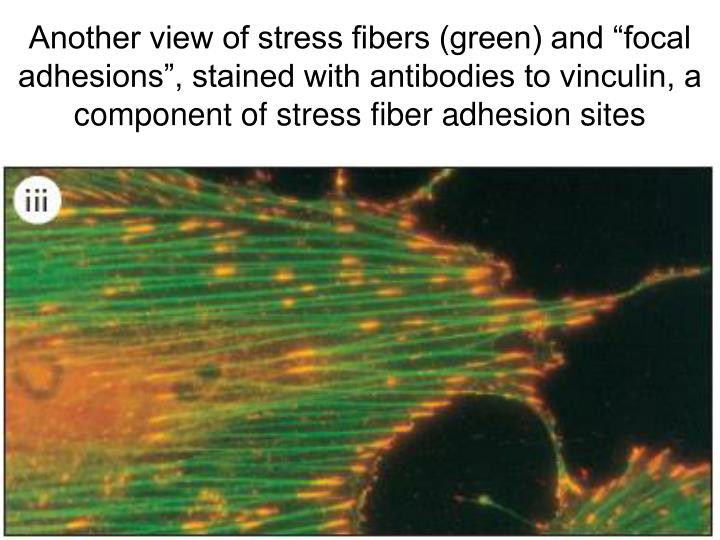 "Another view of stress fibers (green) and ""focal adhesions"", stained with antibodies to vinculin, a component of stress fiber adhesion sites"
