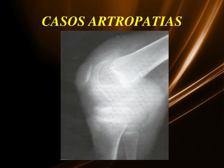 CASOS ARTROPATIAS