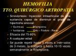 hemofilia tto quir rgico artropatia1