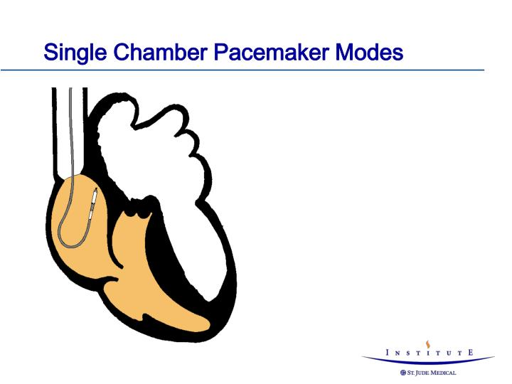 Single Chamber Pacemaker Modes