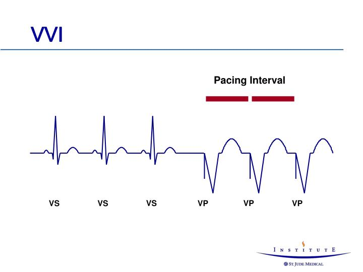 Pacing Interval