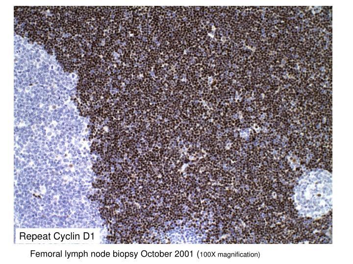 Repeat Cyclin D1