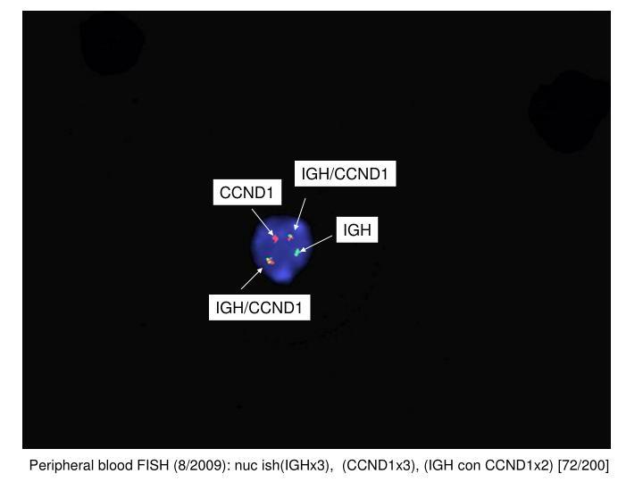 IGH/CCND1