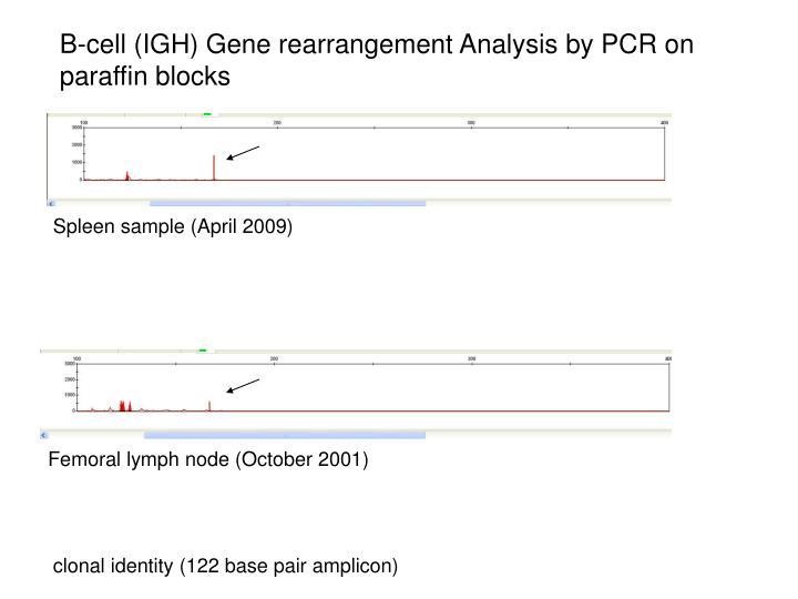 B-cell (IGH) Gene rearrangement Analysis by PCR on paraffin blocks
