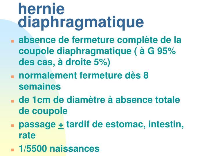 hernie diaphragmatique