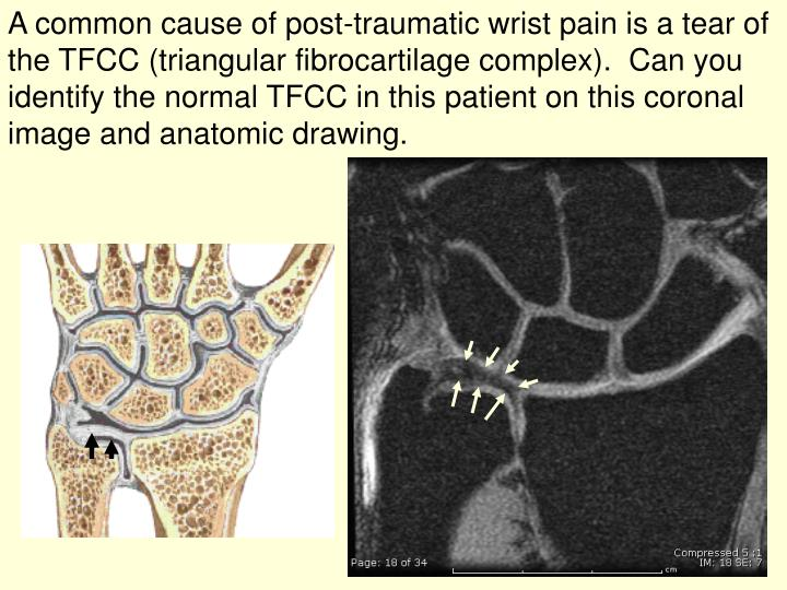 A common cause of post-traumatic wrist pain is a tear of the TFCC (triangular fibrocartilage complex).  Can you identify the normal TFCC in this patient on this coronal image and anatomic drawing.