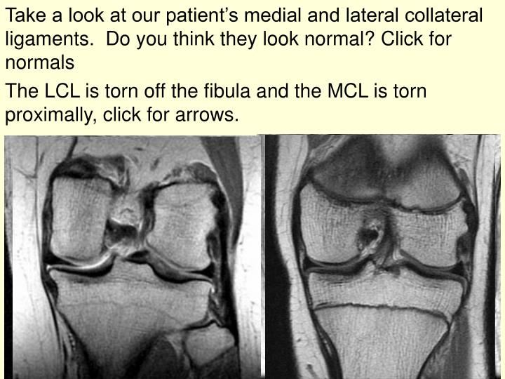 Take a look at our patient's medial and lateral collateral ligaments.  Do you think they look normal? Click for normals