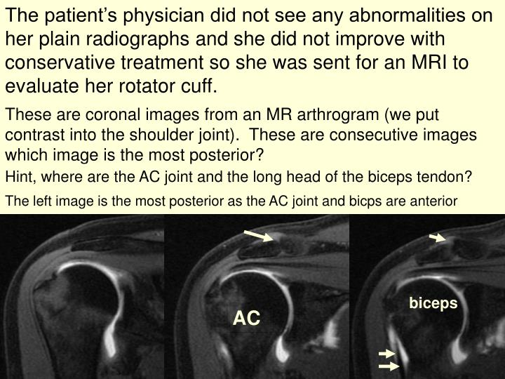 The patient's physician did not see any abnormalities on her plain radiographs and she did not improve with conservative treatment so she was sent for an MRI to evaluate her rotator cuff.