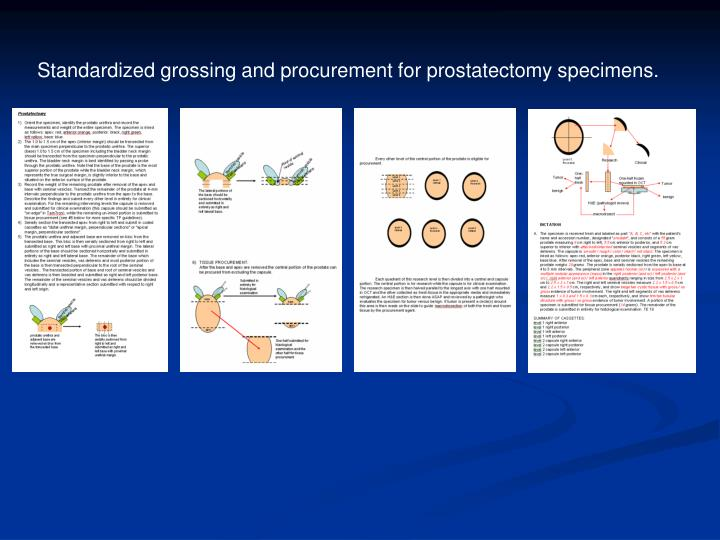 Standardized grossing and procurement for prostatectomy specimens.