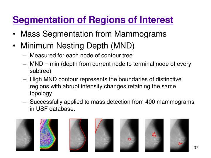 Segmentation of Regions of Interest