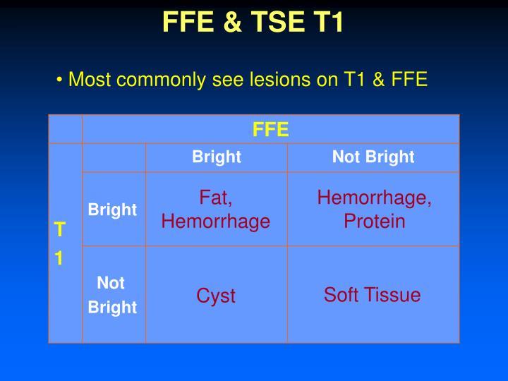 FFE & TSE T1