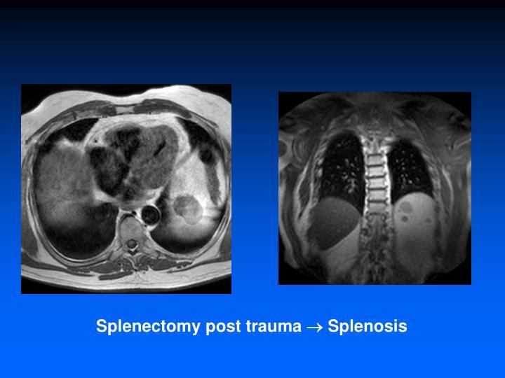 Splenectomy post trauma