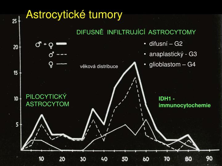 Astrocytické tumory