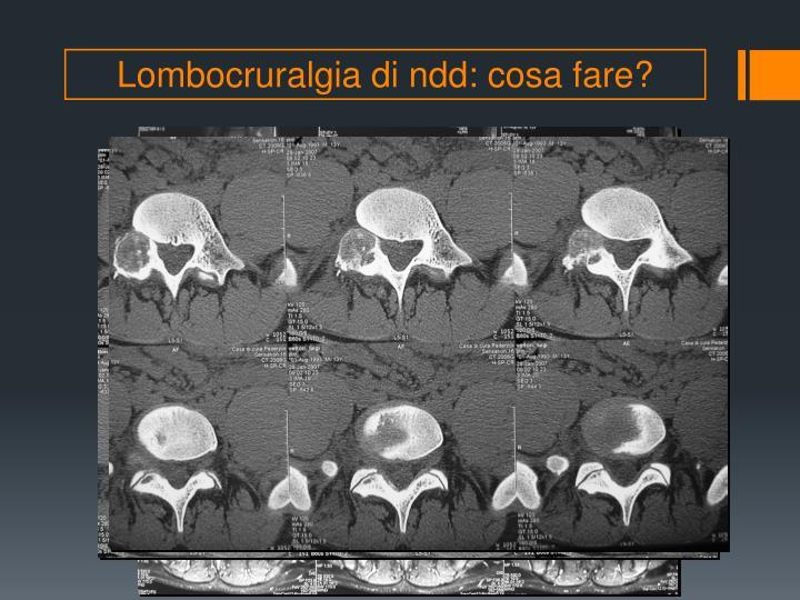 Lombocruralgia di ndd: cosa fare?