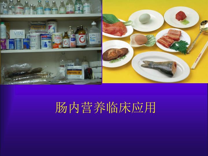 肠内营养临床应用