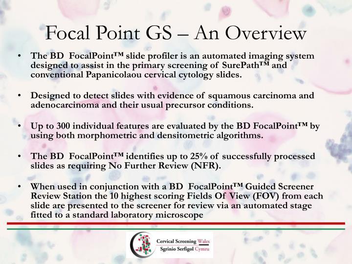 Focal Point GS – An Overview