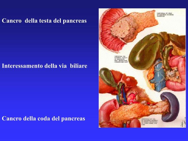 Cancro  della testa del pancreas