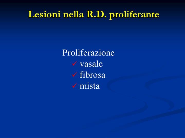 Lesioni nella R.D. proliferante