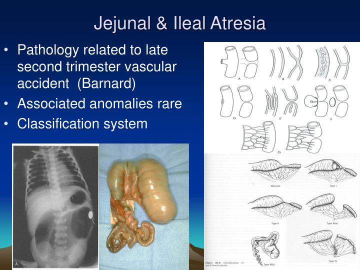 Jejunal & Ileal Atresia