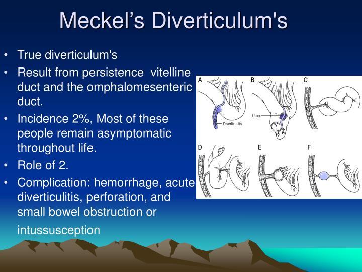 Meckel's Diverticulum's