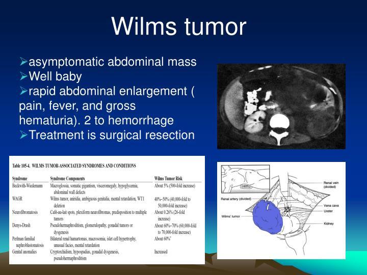 Wilms tumor