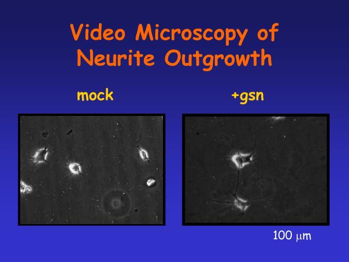 Video Microscopy of Neurite Outgrowth