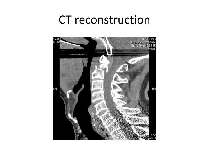 CT reconstruction