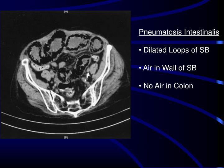 Pneumatosis Intestinalis