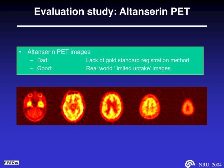 Evaluation study: Altanserin PET