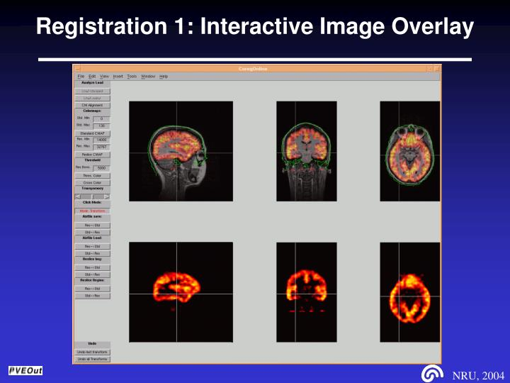 Registration 1: Interactive Image Overlay