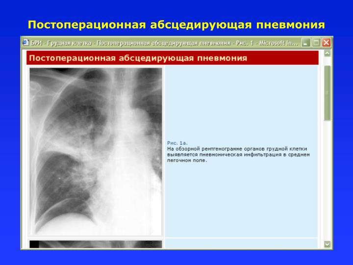 Постоперационная абсцедирующая пневмония