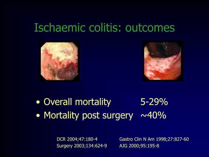 Ischaemic colitis: outcomes
