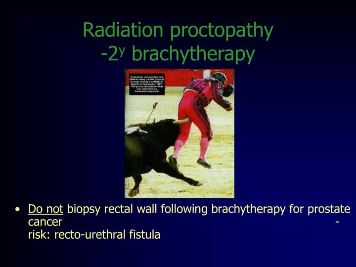 Radiation proctopathy