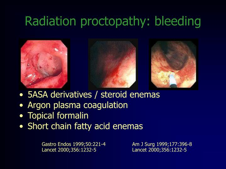 Radiation proctopathy: bleeding