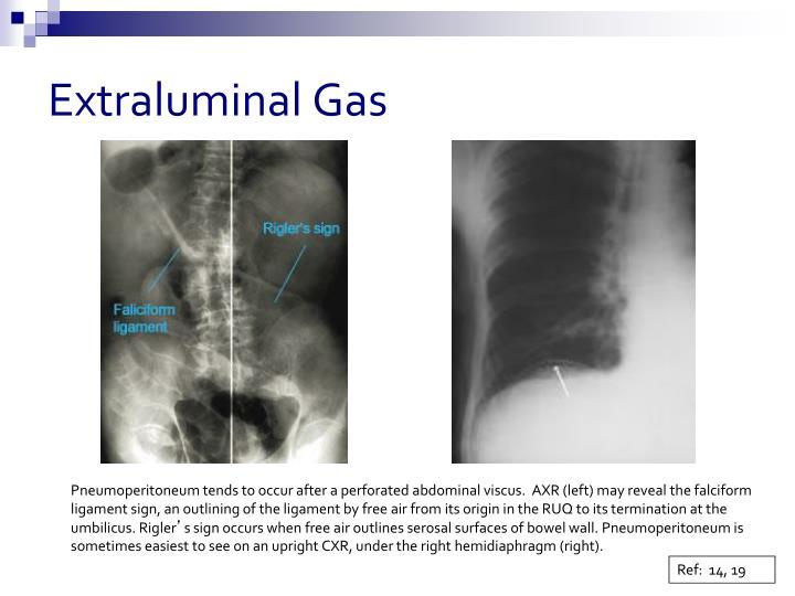 Extraluminal Gas
