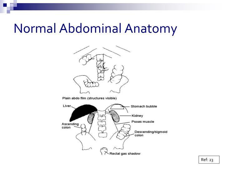 Normal Abdominal Anatomy