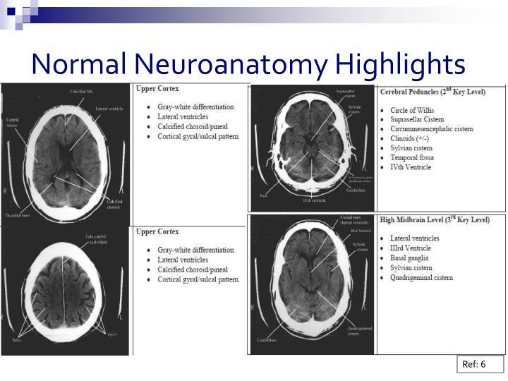 Normal Neuroanatomy Highlights