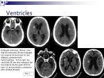 ventricles1