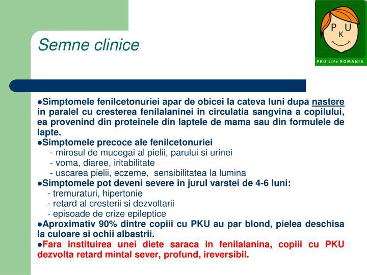 Semne clinice