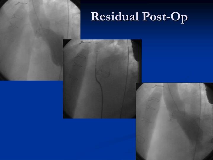 Residual Post-Op