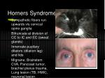 horners syndrome