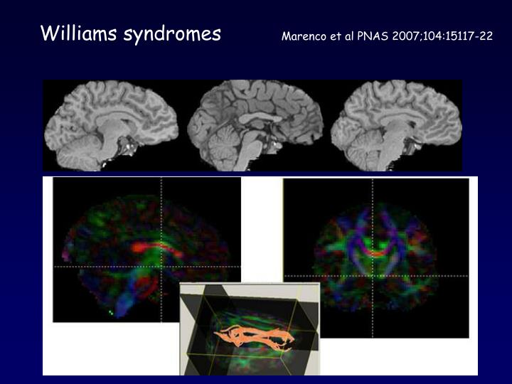Williams syndromes