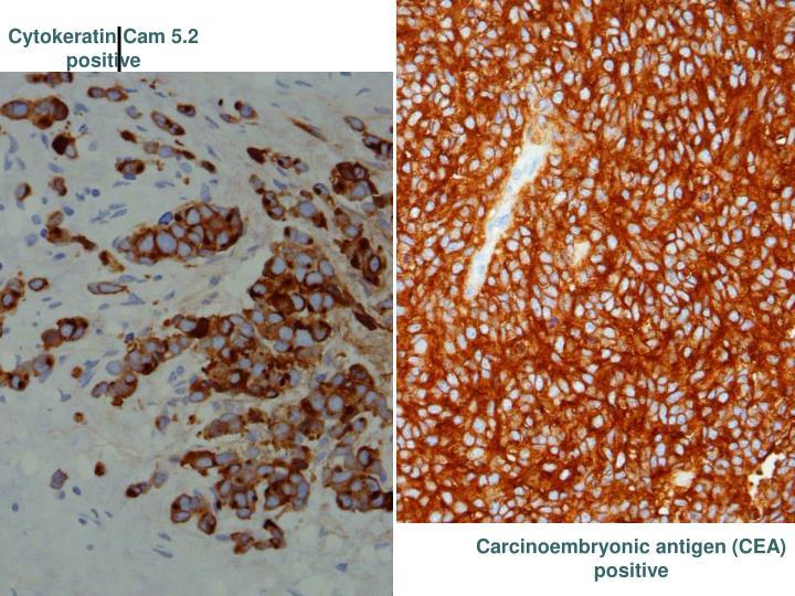 Cytokeratin Cam 5.2