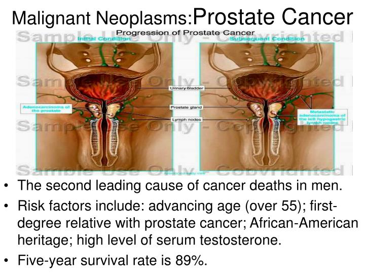 Malignant Neoplasms: