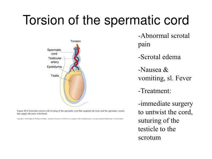 Torsion of the spermatic cord