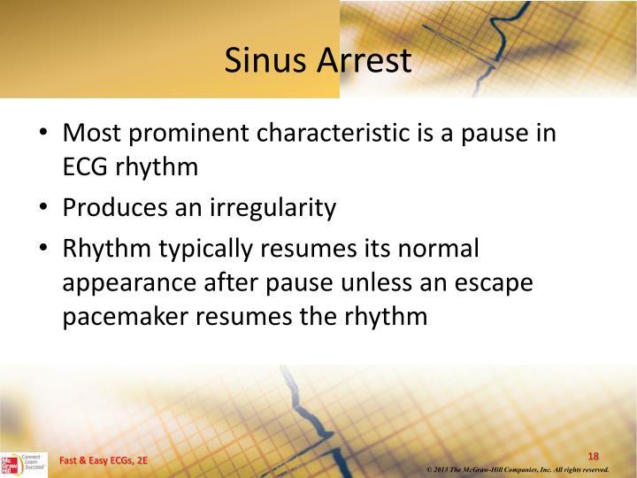 Sinus Arrest