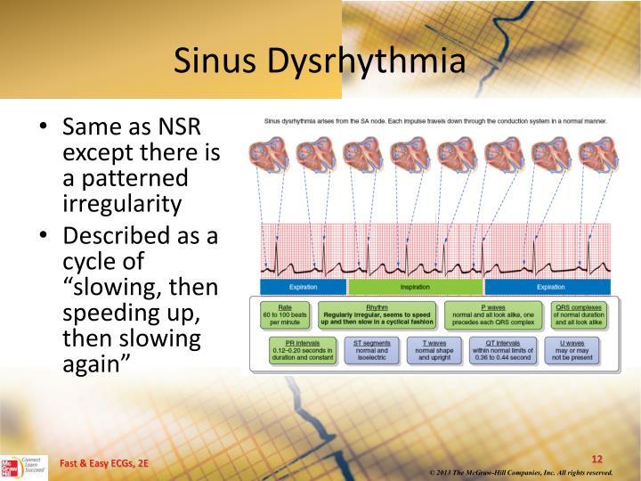 Sinus Dysrhythmia