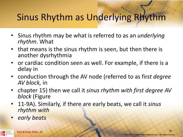 Sinus Rhythm as Underlying Rhythm
