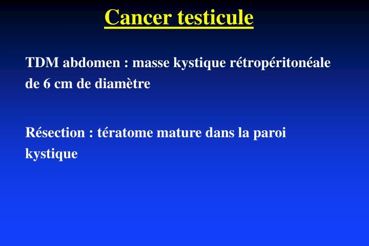 Cancer testicule
